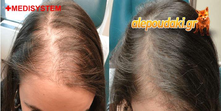 Αυτόλογη μεσοθεραπεία μαλλιών (PRP). Θεραπεία κατά της τριχόπτωσης PRP Hair σε δύο συνεδρίες !!